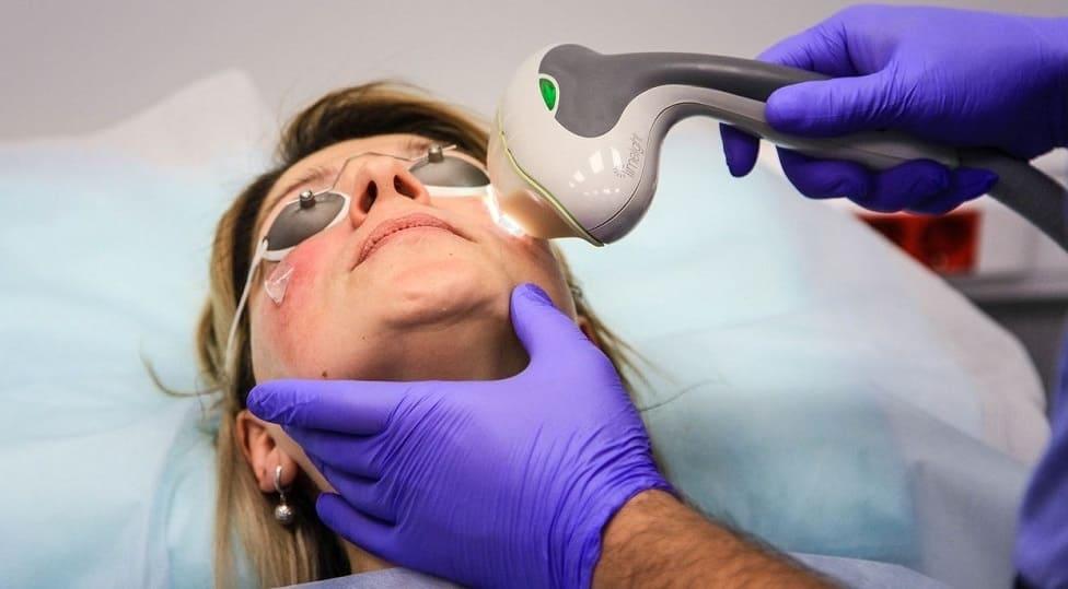 Фотокоагуляция сосудов на лице